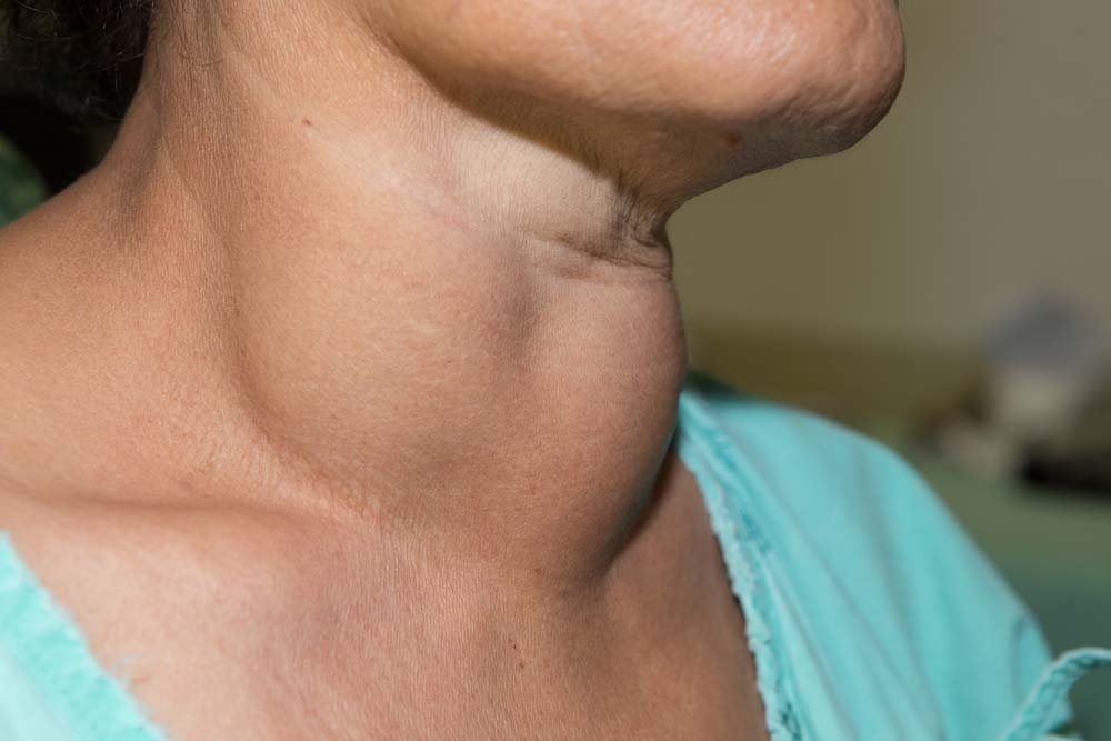 Thyroid Cancer Symptoms Thyroid Cancer Symptoms And Early Signs